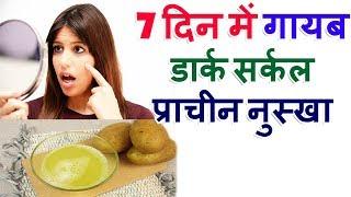 Get Rid Of Dark Circles Tips In Hindi How To Remove Dark Circles Under Eyes आँखों के डार्क सर्कल