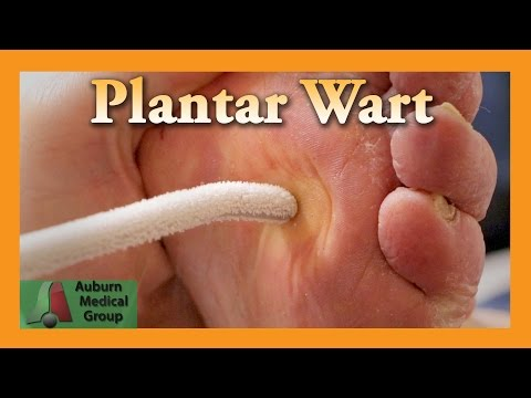 Plantar Wart Treatment | Auburn Medical Group
