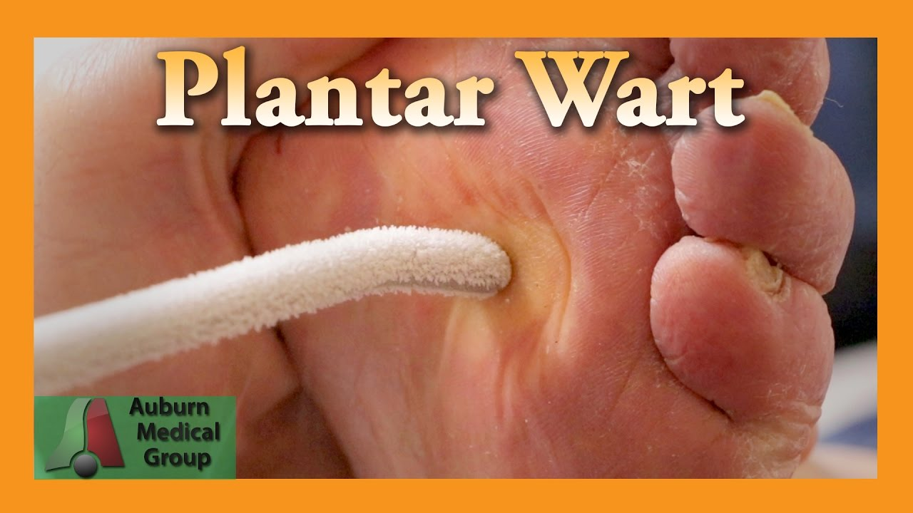 Types of Warts: Do You Know All 8 of Them?
