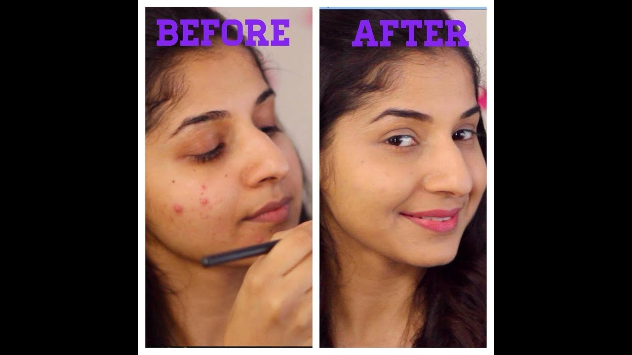 How to cover pimples | acne skin - YouTube