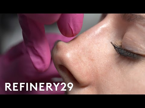 I Tried A Non-Surgical Nose Job   Macro Beauty   Refinery29