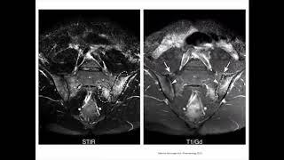 IRM des sacro-iliaques