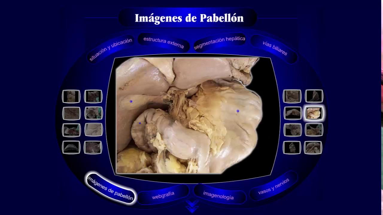 Anatomía del Hígado: Imagenes de pabellón - YouTube