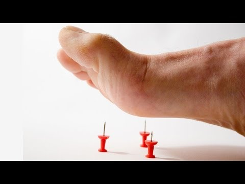 Marlton Peripheral Neuropathy | New Calmare Therapy Pain Management Demonstration
