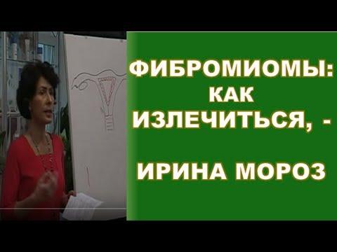 Фибромиомы: как излечиться, - гинеколог-эндокринолог Ирина Мороз