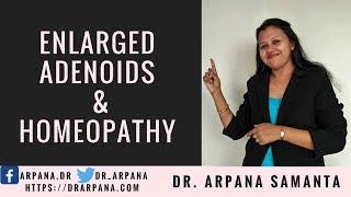 ऐडनॉइड्ज़ की सूजन या बड़े कंठग्रंथि का होमियोपैथी इलाज    Enlarged ADENOIDS & Homeopathy
