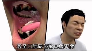 口腔癌患者 9成嚼檳榔--蘋果日報 20141126 thumbnail