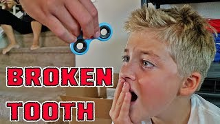 FIDGET SPINNER BROKE MY TOOTH
