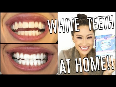 How I Whiten My Teeth At HOME | Does It Work? Crest 3D White Glamorous White Whitestrips