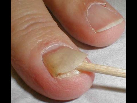 Natural Essential Oil Home Remedy to Cure Toenail Fungus - YouTube
