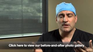 Seattle Facelift   A Natural Approach   Dr  Jonov from The Gallery of Cosmetic Surgery Seattle Thumbnail