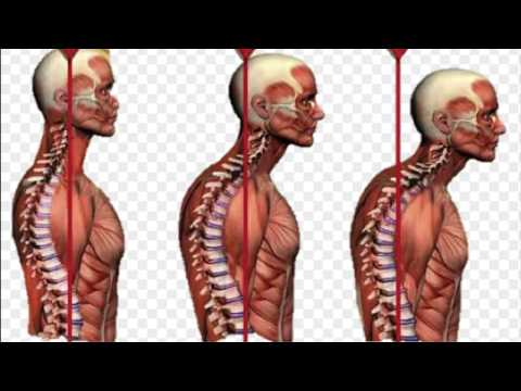 only 3 minutes to fix Hunchback Posture, Rounded Shoulders, Slumping, Nerd Neck so simple and you ca.