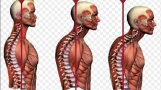 Selama 30 tahun Rachel Maryam harus bergumul dengan rasa nyeri di tulang belakangnya. Beberapa hari .