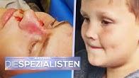 Paul (7) am Steuer! Bruder Lukas (15) bei Autounfall verletzt   Die Spezialisten   SAT.1
