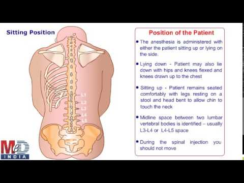 Spinal or Epidural anesthesia - YouTube