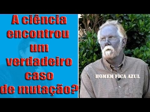 Mutante Real? Homem Fica Azul...