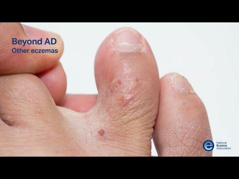 Beyond AD: Other Eczemas