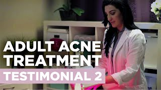 Envision Acne & Skin Care Center | New Jersey Acne Treatment Center Testimonial 2