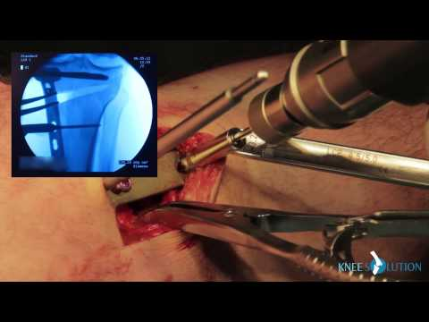Reorientational Proximal Femoral Osteotomies for Correction of Hip Contractures in Children with...из YouTube · Длительность: 1 мин15 с