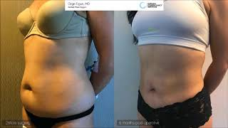 Vaser Liposuction Before & After - 6 Months Result - Ozge Ergun MD, Aesthetic Plastic Surgeon