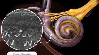 Surdités neurosensorielles (S. Blatrix, F. Venail)