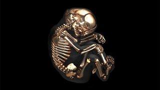Мама носила скелет ребёнка в себе 40 лет!
