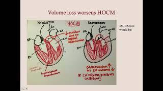 Cardiomyopathies - CRASH! Medical Review Series