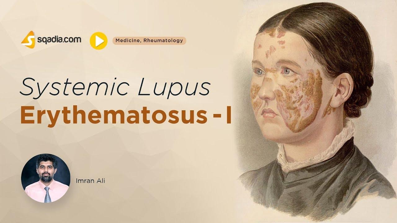 lupus nehéz fogyni)