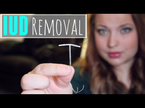 Iud Removal My Experience Youtube