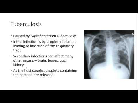 Infectious disease for AS Biology