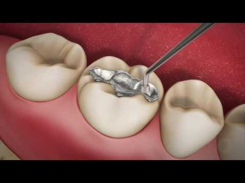 Dental Patient Education 1 online video