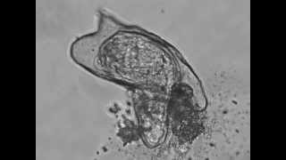 Hatching of a Schistosoma Mansoni Miracidium