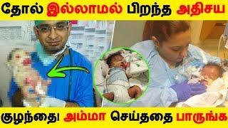 தோல் இல்லாமல் பிறந்த அதிசய குழந்தை! அம்மா செய்ததை பாருங்க   Tamil News   Tamil Seithigal  