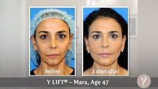 Y LIFT ® 2013 - Mara (Spanish w/Subtitles) | Instant, Non Surgical Facelift