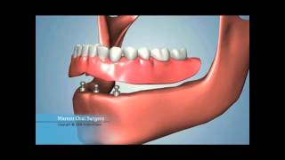 Missing All Teeth? Dental Implants And Other Options