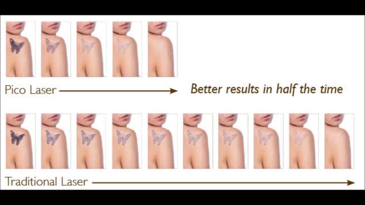 Picoway tattoo removal in houston tx tomball tx youtube for New tattoo removal technology