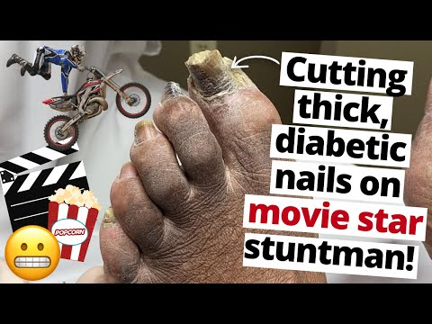 Cutting THICK, diabetic nails on Hollywood stuntman!