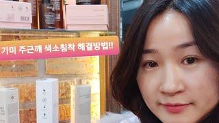 인셀덤사용법♡인셀덤의봄♡기미 주근깨 색소침착 해결방법!…