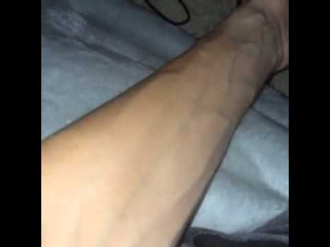 how girls react over veins on guys arms - youtube, Cephalic Vein