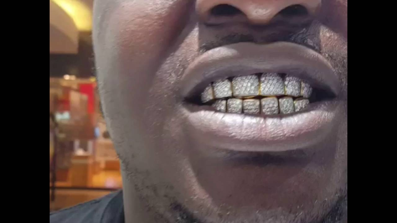 Gold Teeth With Diamonds - YouTube