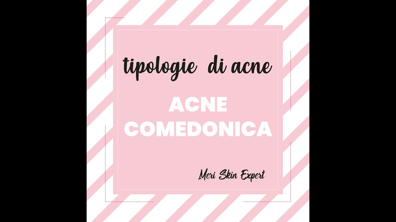 Che cos'è l'acne comedonica | Meri Skin Expert | Viva Benessere Torino