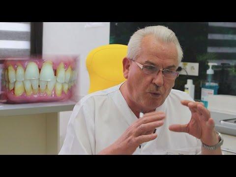 Кариес зубов: как лечить, какой бывает, причины