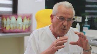 видео Пародонтит: причины, симптомы, методы лечения