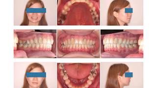 【抜かない矯正】開咬、出っ歯を非抜歯で!治療例7(京都ーさわだ矯正歯科クリニック)