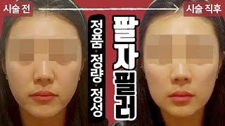 앞광대 팔자 필러 시술 영상 톡스앤필 서울대입구점 봉천…