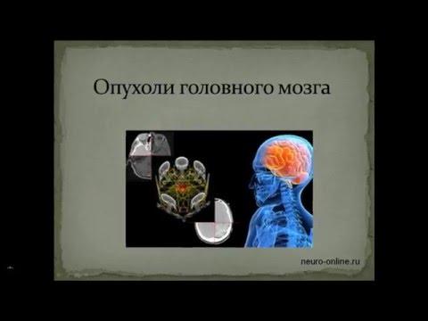 Лечение опухоли головного мозга - что нужно знать