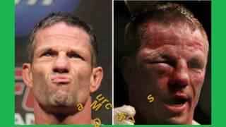 14 combattants de UFC et de MMA avant et après leur combat