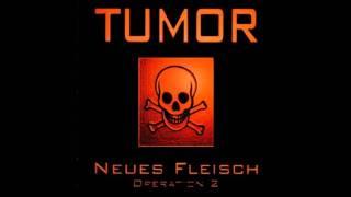Tumor - Operation 1