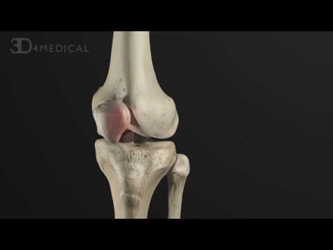 Anterior Cruciate Ligament: Pathology and Management | Animated Tutorial