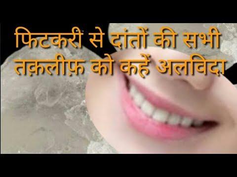 फिटकरी से दांतों की सभी तक़लीफ़ को कहें अलविदा |  Tooth aching |benefits of alum ( Fitkari ke fayde)